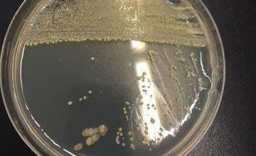 Mezofilik Aerobik Bakteri Analizi